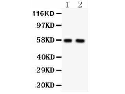 Anti-Alkaline Phosphatase/ALPL Antibody