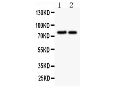 Anti-gamma Catenin/JUP Antibody
