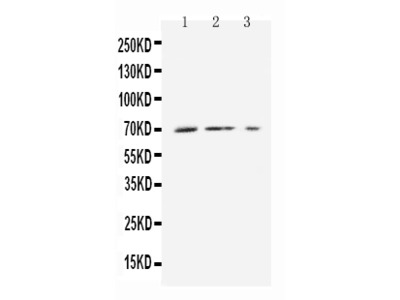 Anti-Monocarboxylic acid transporter 1/SLC16A1 Antibody