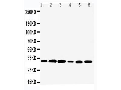 Anti-Tafazzin/TAZ Antibody