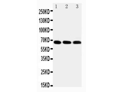 Anti-IRAKM/IRAK3 Antibody