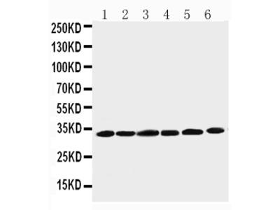 Anti-Cyclin D1/CCND1 Antibody