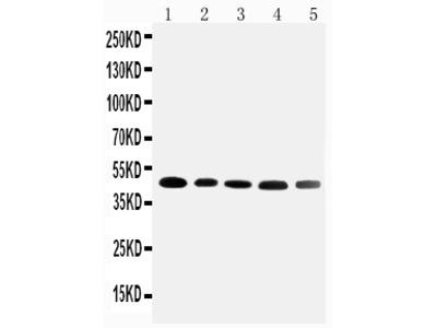 Anti-Cortisol Binding Globulin/SERPINA6 Antibody