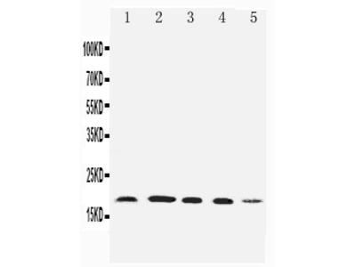 Anti-Diubiquitin/UBD Antibody