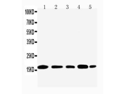 Anti-Nucleolysin TIA-1 isoform p40 TIA1 Antibody