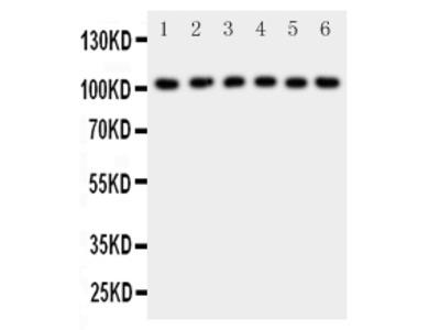 Anti-NFkB p105/p50/NFKB1 Antibody