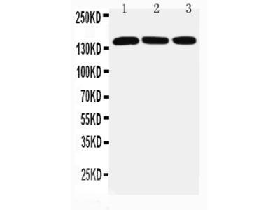 Anti-ATX2/ATXN2 Antibody