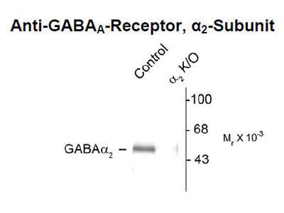Anti-DNA Antibody Products | Biocompare com