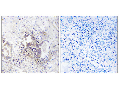 CHML Antibody (OAAF04109)