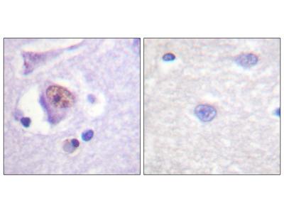 SOX9 Antibody (OAAF00840)