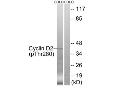 CCND2 Antibody (Phospho-Thr280) (OAAF00542)