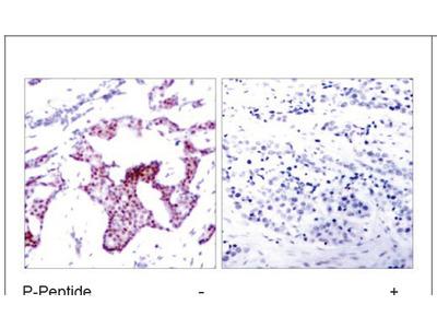 NF-κB p65 Antibody (Phospho-Ser276) (OAEC00011)
