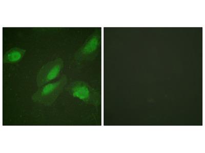 AKT1 Antibody (OAAF00965)