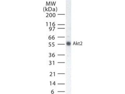 AKT2 Monoclonal Antibody (95C657.1.2)