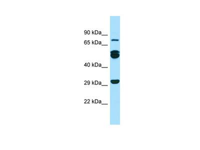 RAB11FIP1 Antibody - N-terminal region (ARP65139_P050)