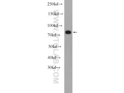 MEFV antibody