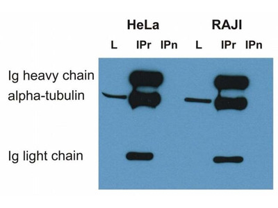 alpha Tubulin Monoclonal Antibody (TU-16)