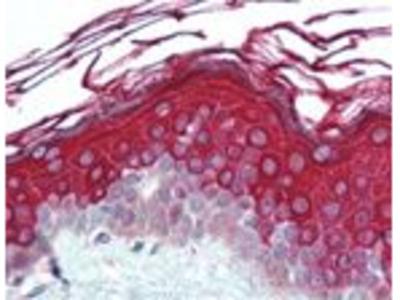 ALAS1 Polyclonal Antibody