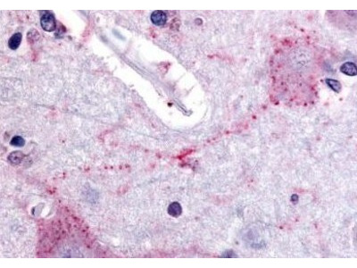 PACE4 /PCSK6 Antibody