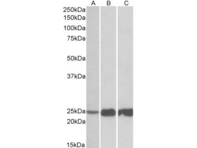 Goat Polyclonal Troponin I type 2 (fast skeletal) Antibody