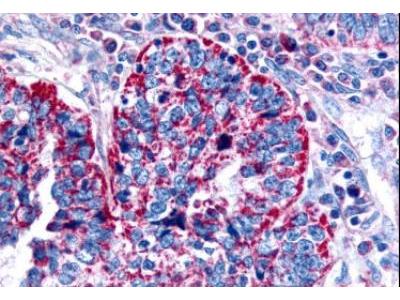 Muscarinic Acetylcholine Receptor M2 / CHRM2 Antibody
