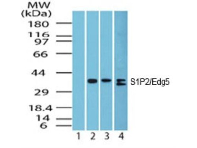 S1P2 / EDG-5 / S1PR2 Antibody