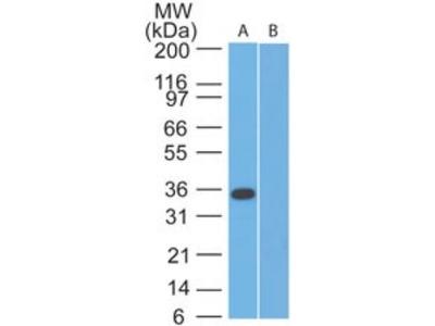 SPARC Antibody