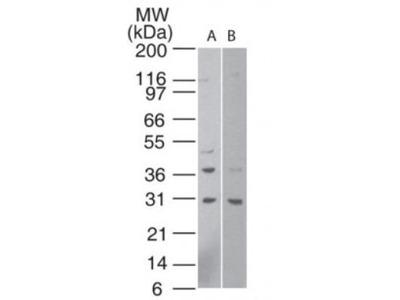 Rabbit Polyclonal HTRA1 / PRSS11 Antibody