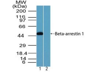 Rabbit Polyclonal beta-Arrestin 1 Antibody