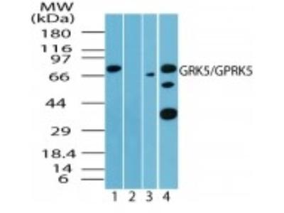 Rabbit Polyclonal GRK5 Antibody