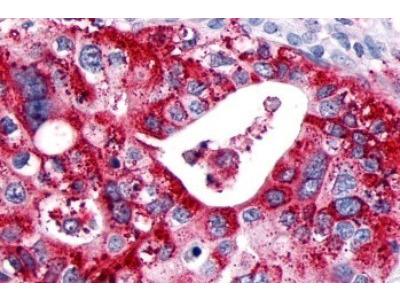 Rabbit Polyclonal GPCR GPR89 Antibody