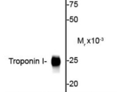 Rabbit Polyclonal Troponin I Type 3 (cardiac) Antibody