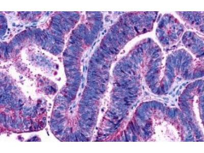 LPAR3 /LPA3 /EDG-7 Antibody