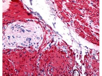 Rabbit Polyclonal Gastrin-releasing Peptide R / GRPR Antibody