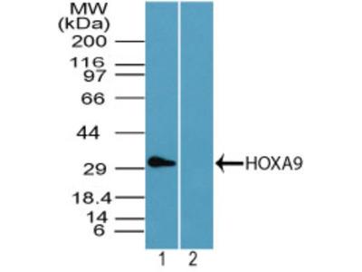 Rabbit Polyclonal HOXA9 Antibody
