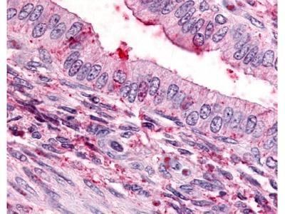 Thromboxane A2 R /TBXA2R Antibody