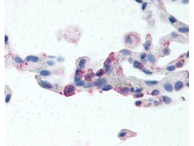 Rabbit Polyclonal EMR2 Antibody
