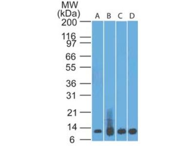 S100A8 /A9 Antibody (48M7C7)
