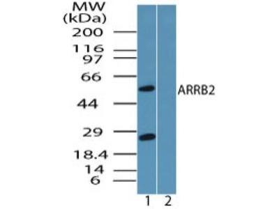 Rabbit Polyclonal beta-Arrestin 2 Antibody