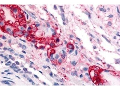 CRHR1 / CRF1 Antibody