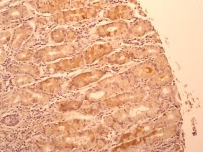 IL-17F Antibody (4H1629)