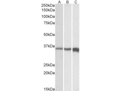 Goat Polyclonal Troponin T Type 3 (fast skeletal) Antibody