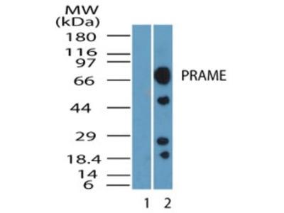 PRAME Antibody