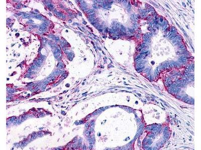 Rabbit Polyclonal LPAR3 / LPA3 / EDG-7 Antibody