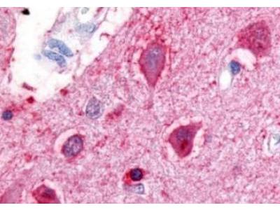 Urotensin-II R /GPR14 Antibody
