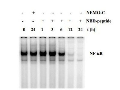 IKK gamma Inhibitor Peptide Set