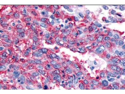 Rabbit Polyclonal CRLR Antibody