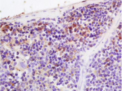 Factor B Polyclonal Antibody, Biotin Conjugated