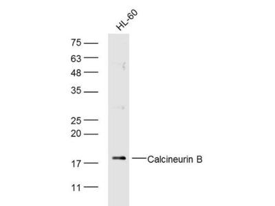 Calcineurin B/PP2B-B1 Antibody, Biotin Conjugated