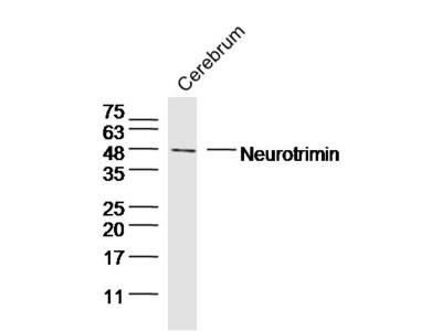 Neurotrimin/HNT Antibody, Biotin Conjugated